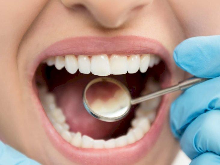 દાંતમાં દુખાવો થતો હોય તો અપનાવી જુવો આ ઉપાય, દેશી પદ્ધતિથી કરો સારવાર